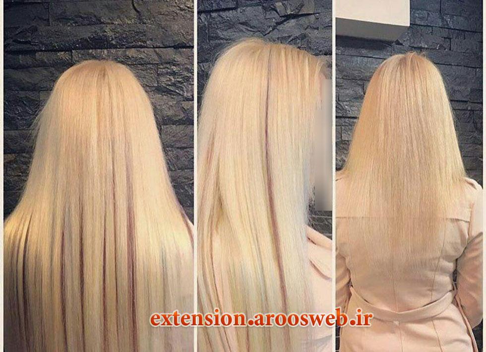 اکستنشن مو به روش لیزری