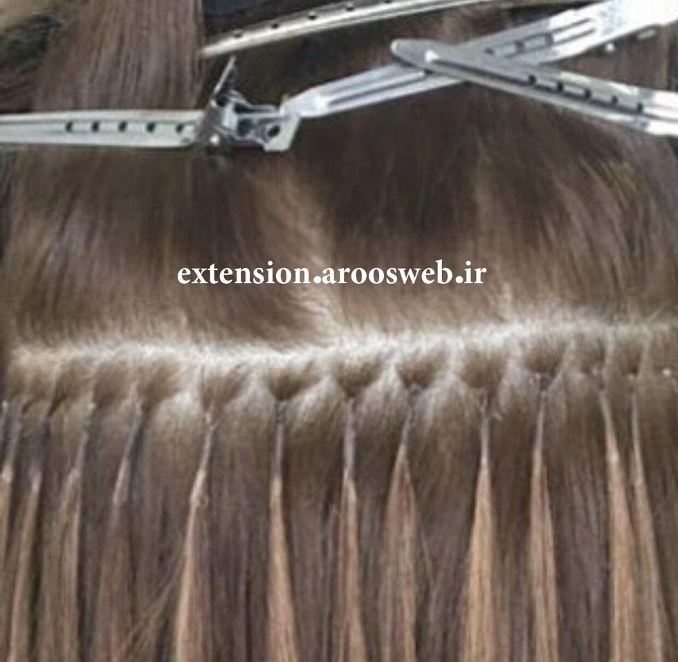 عکس اکستنشن لیزری موی سر